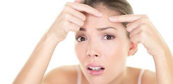 Dĺžka liečby akné