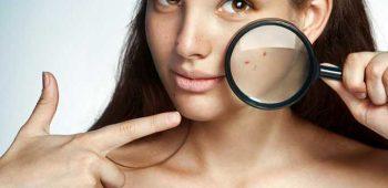 Samoliečba akné