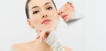 Typy na liečbu akné