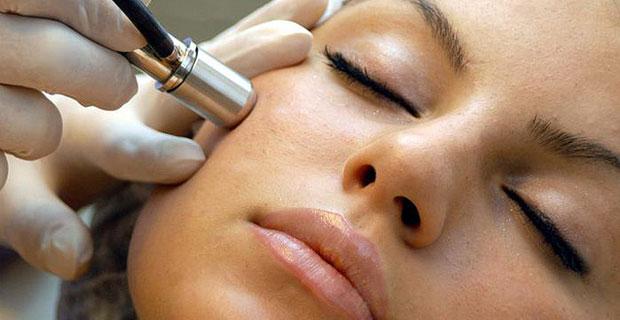 Laserová terapia akné