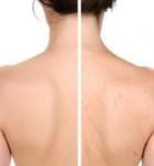 akné na chrbte