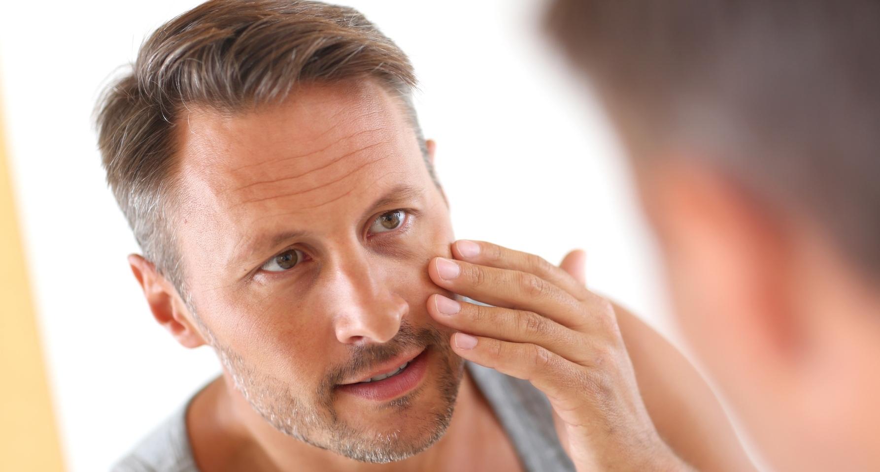 akné u mužov