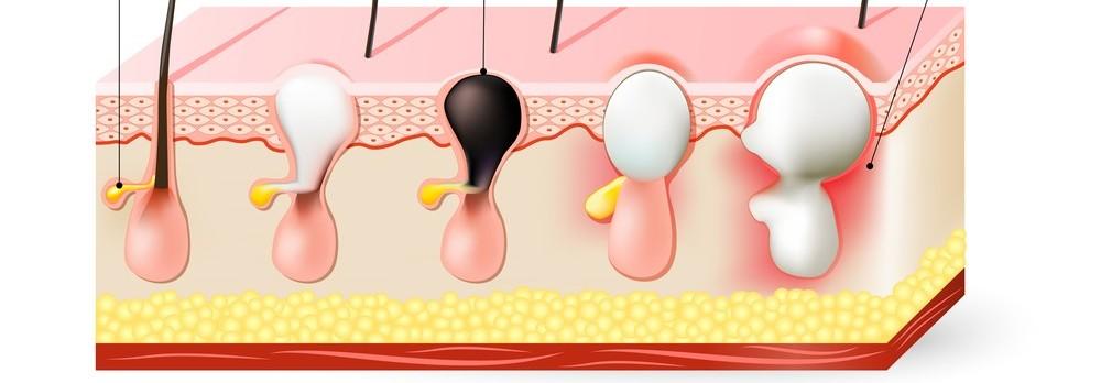 Aký je rozdiel medzi akné a vyrážkou